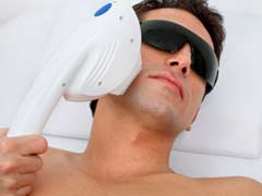 10 Laser Hair Removal Facts Men Should Know!